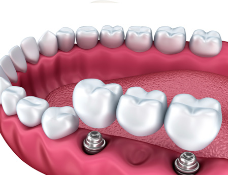 dental-implant-bridge-web