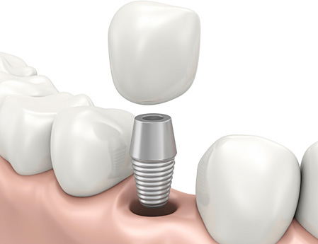 dental-implant-crown-web